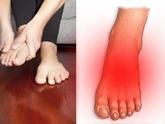 como quitar el dolor de pies